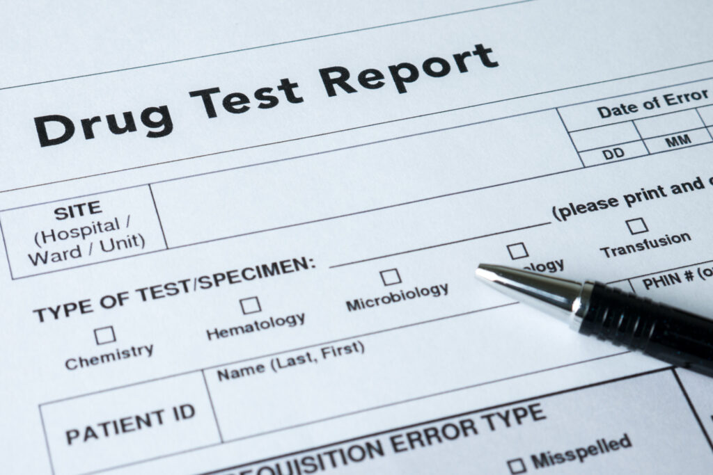 Have you been blindsided and are now worried about drug testing at work? Learn how to pass a drug test (successfully) through the insights shared in this guide!
